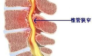 怎样预防椎管狭窄
